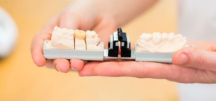 Prosthodontics 2