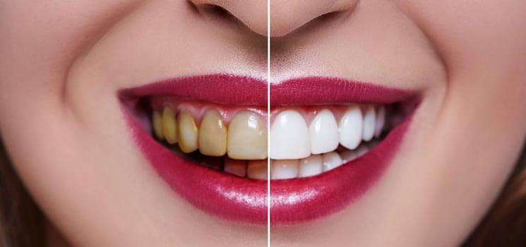 Dentisterie esthétique 1