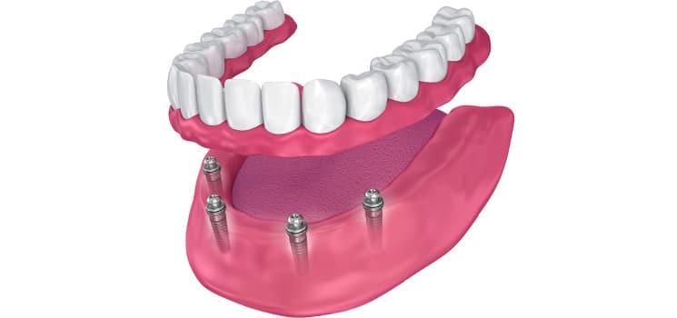 Prosthodontics 4