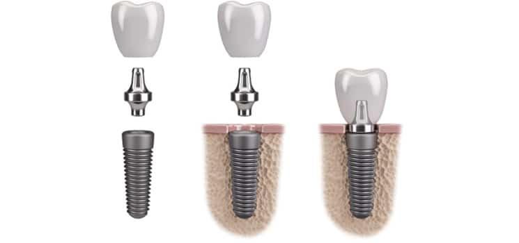Implantologie 1